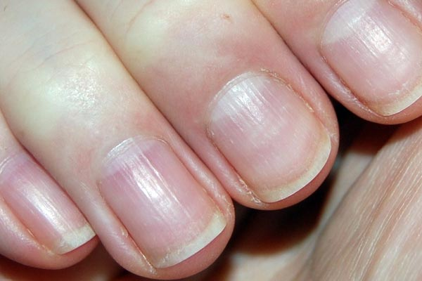 fibromyalgia-and-Brittle-Nails