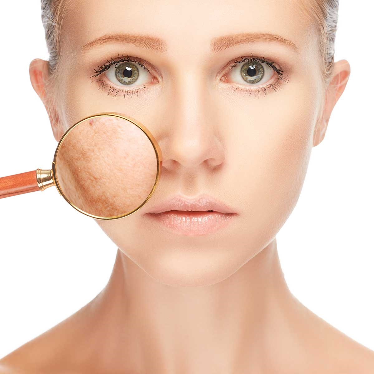 Skin Pigmentation Treatment: Body Aesthetics in Southend-on-Sea ...