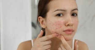 Do Cosmetics Make Acne Worse?