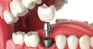 Three reasons why dental implants are important