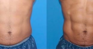 Everything to know about Trusculpt flex treatment