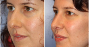 <strong>4 Benefits Of Non-Surgical Nose Jobs In Santa Monica </strong>