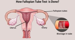 <strong>How Does Blockage of the Fallopian Tubes Cause Female Infertility?</strong>